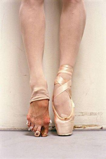 Blameless Ballet Bruised
